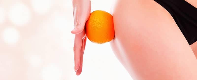 Wie Sie durch die Ernährung einer Bindegewebsschwäche entgegenwirken können