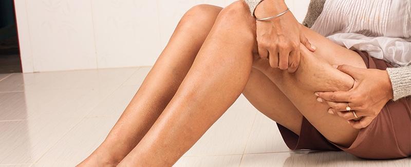 Cellulite – eine Erfindung der Neuzeit?!