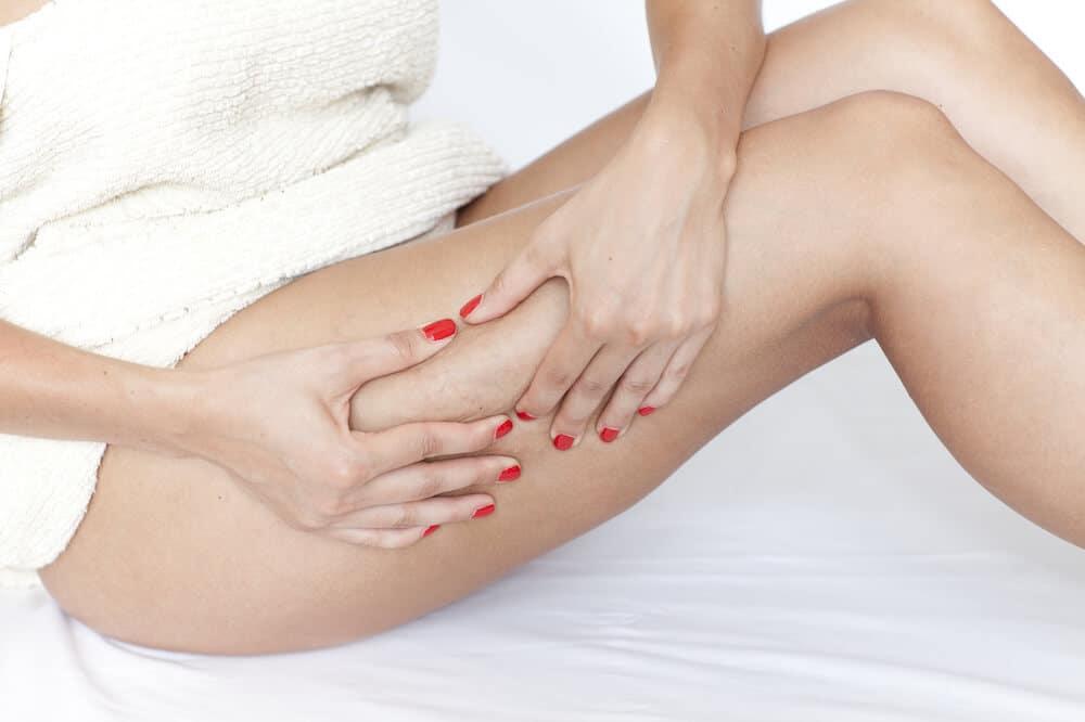 Hat Cellulite auch Auswirkungen auf die Gesundheit?